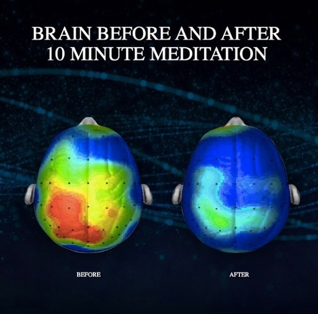 brain_on_meditation